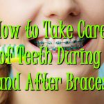 How to Take Care of Teeth During and After Braces